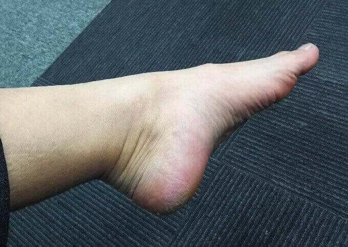 【閲覧注意】おっさんが足の角質ケアをやってみた